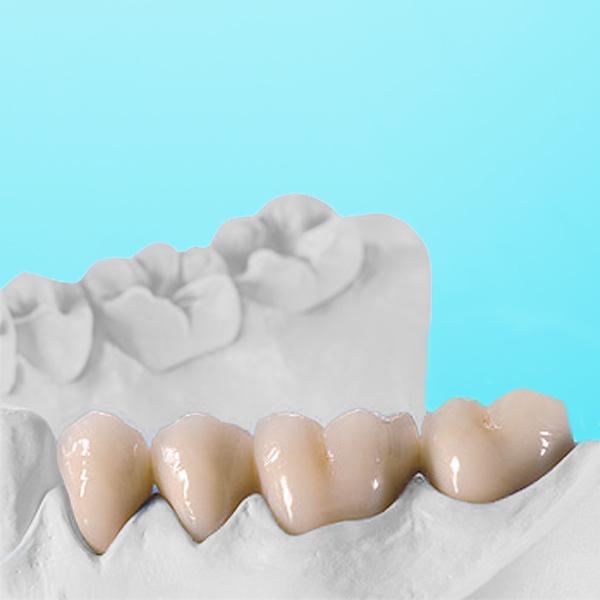 Zahngerüst keramisch verblendet