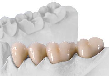 Festsitzender Zahnersatz - Gerüst keramisch verblendet